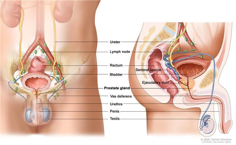 simptomi raka prostate)