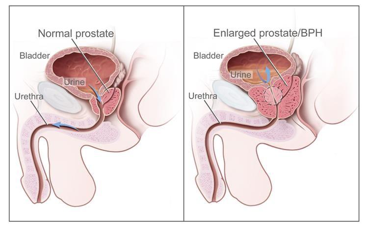 rak prostate simptomi i lecenje A prosztatitis előadása